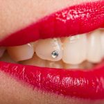 Estetica dental santiago - piercing dental