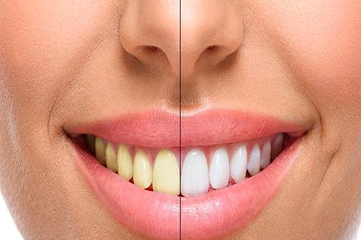 Estética Dental Santiago de Compostela